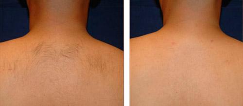 Лазерная эпиляция спины жен Лазерное удаление татуировок Проезд Мясокомбинатский 3-я линия Чебоксары